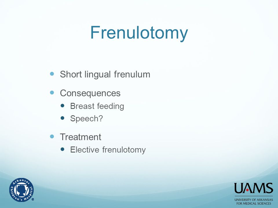 Frenulotomy Short lingual frenulum Consequences Treatment
