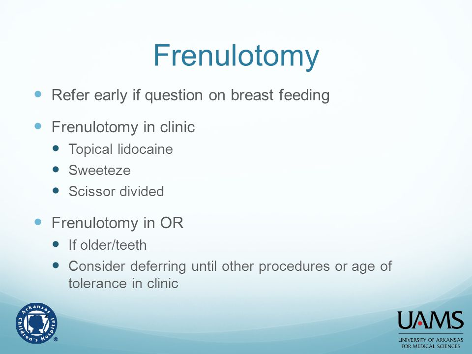 Frenulotomy Refer early if question on breast feeding