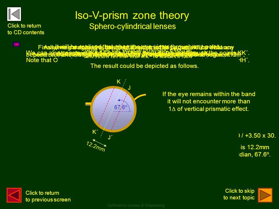 . . Iso-V-prism zone theory Sphero-cylindrical lenses