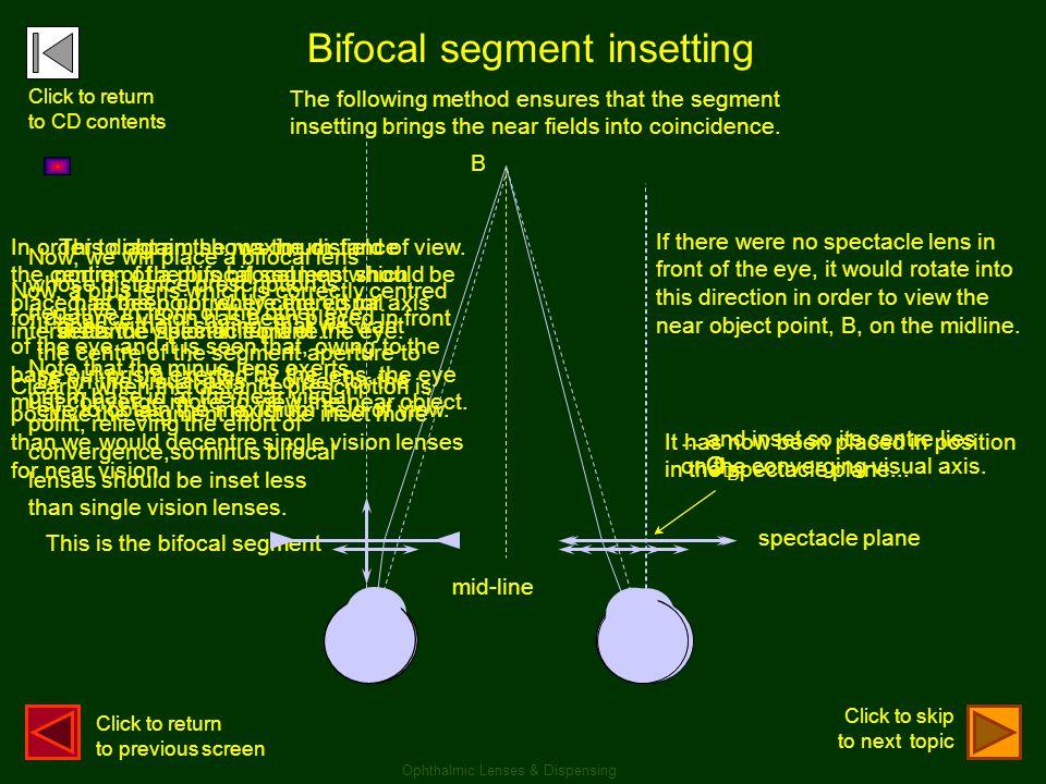 Bifocal segment insetting