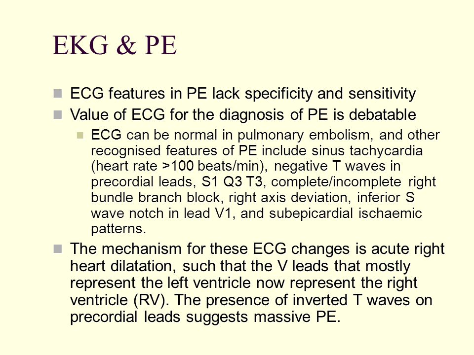 EKG & PE ECG features in PE lack specificity and sensitivity