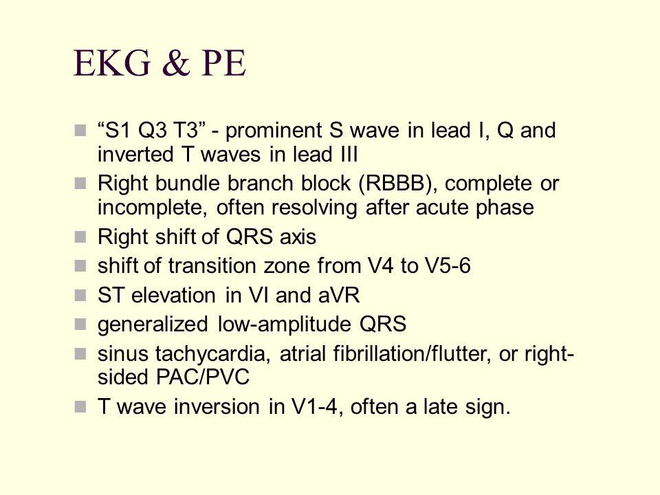 EKG & PE S1 Q3 T3 - prominent S wave in lead I, Q and inverted T waves in lead III.