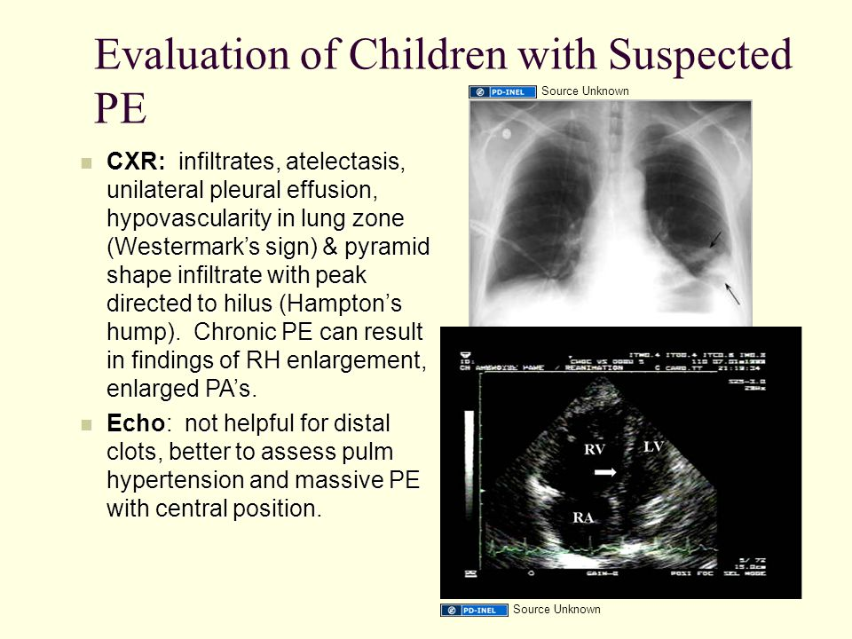 Evaluation of Children with Suspected PE