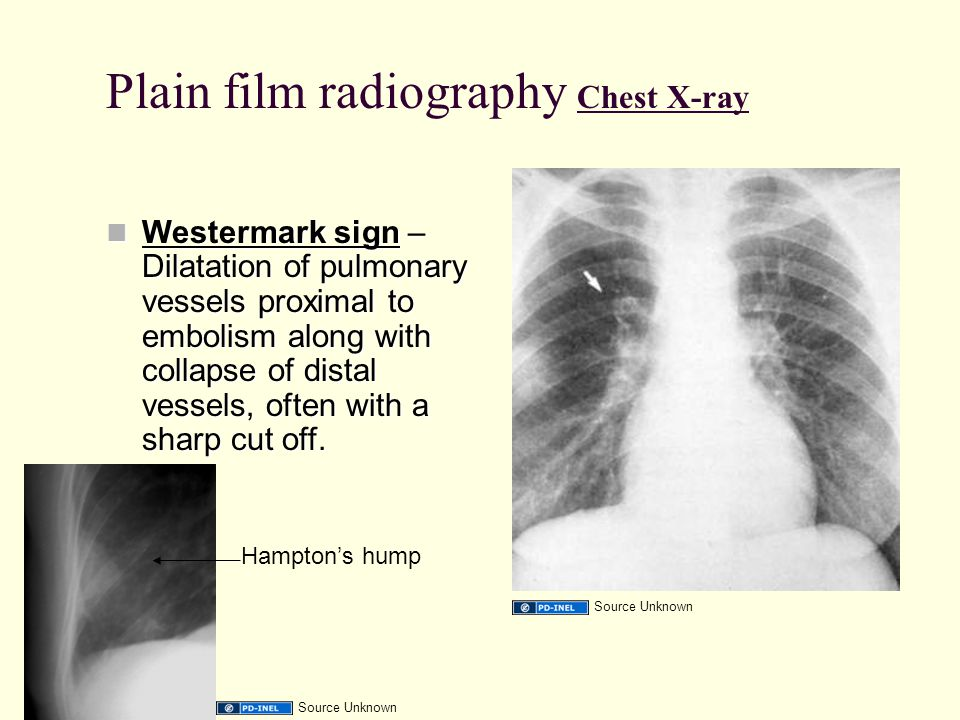 Plain film radiography Chest X-ray