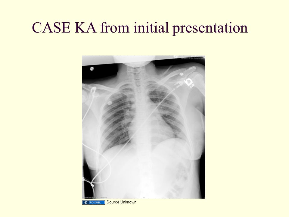 CASE KA from initial presentation