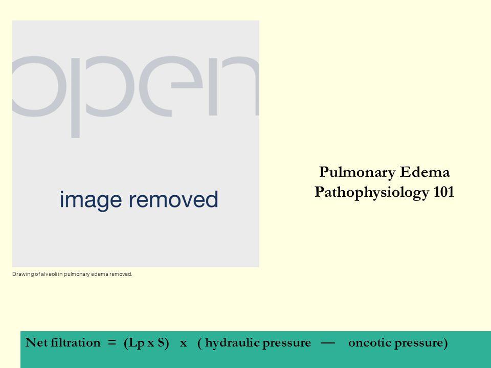 Pulmonary Edema Pathophysiology 101