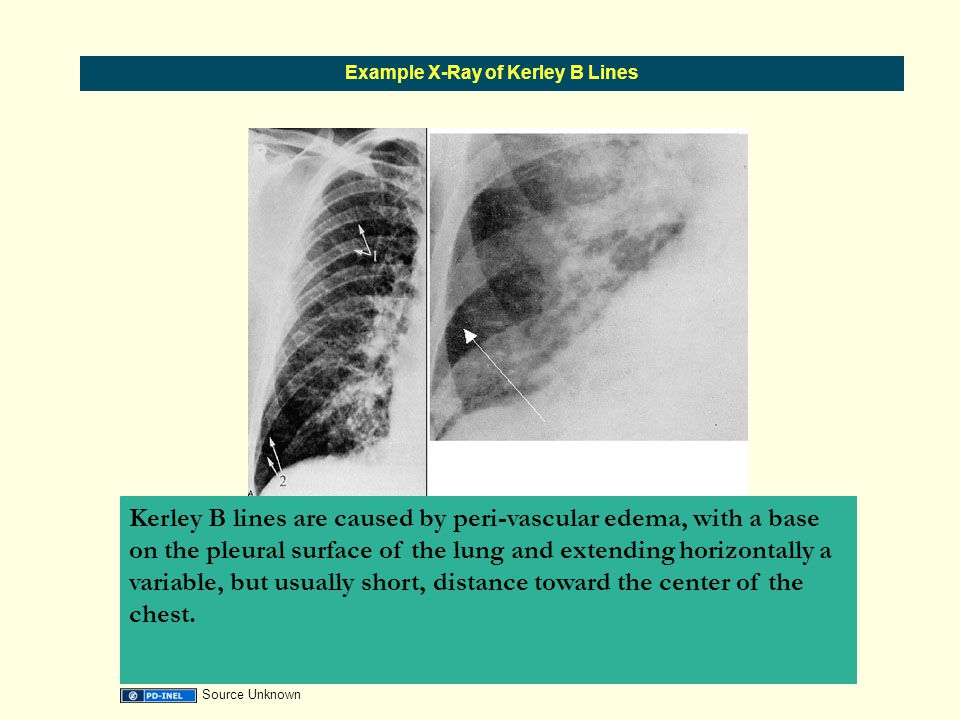 Example X-Ray of Kerley B Lines