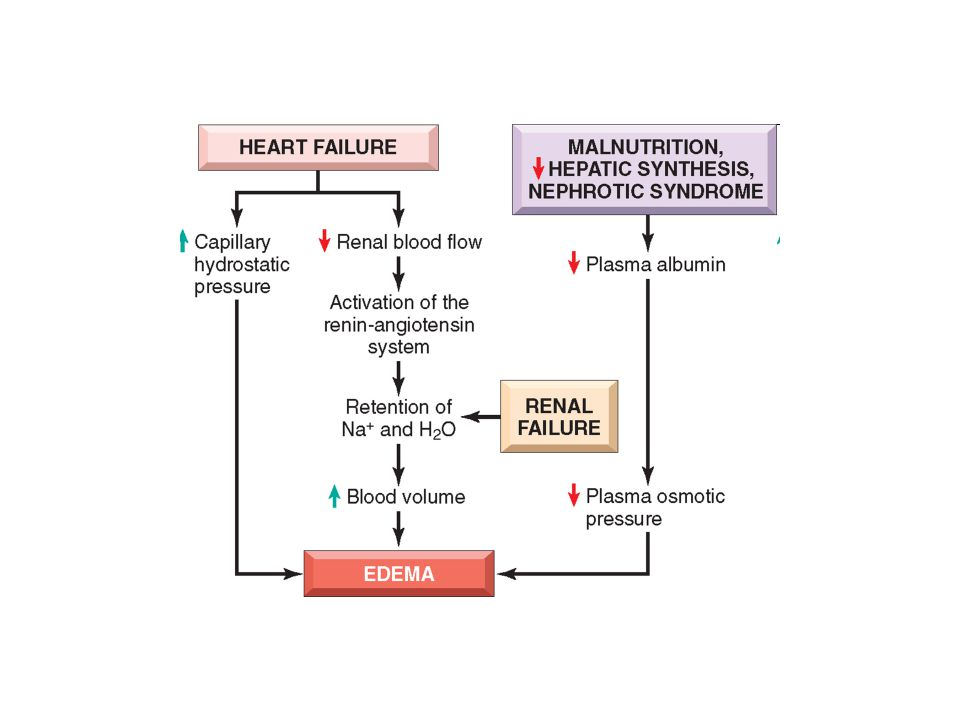 FIGURE 4-2 Pathways leading to systemic edema from primary heart failure, primary renal failure, or reduced plasma osmotic pressure (e.g., from malnutrition, diminished hepatic synthesis, or protein loss from nephrotic syndrome).