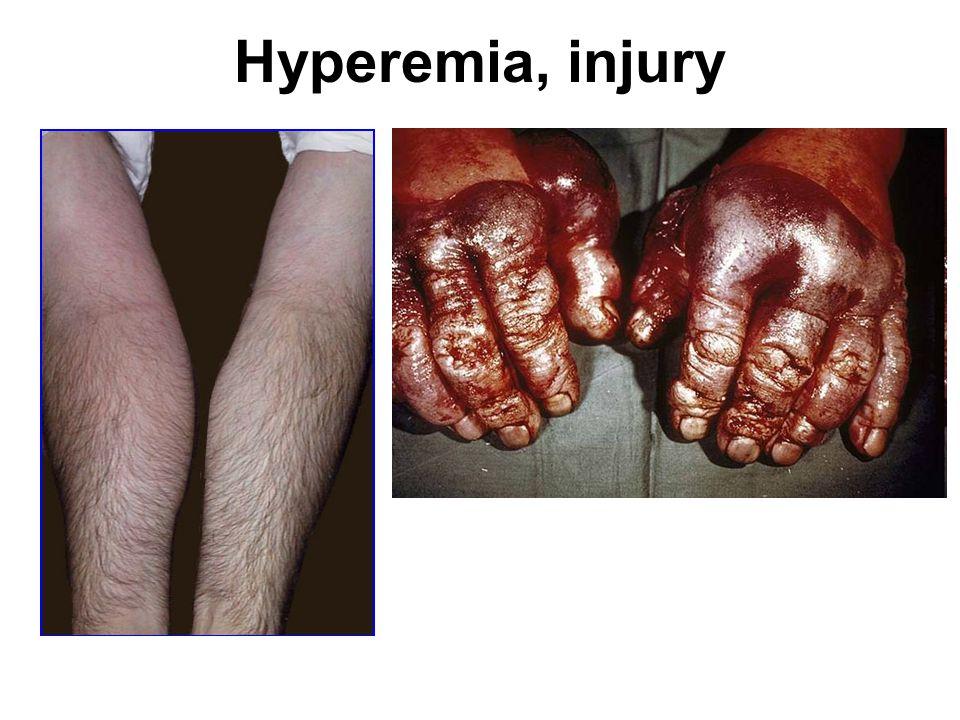 Hyperemia, injury http://library.med.utah.edu/WebPath/INFLHTML/INFL068.html.