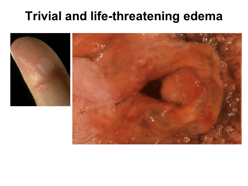 Trivial and life-threatening edema