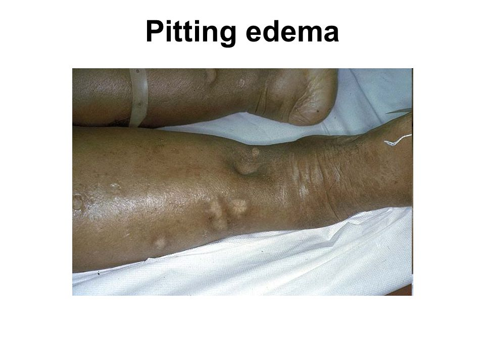 Pitting edema From GRIPE