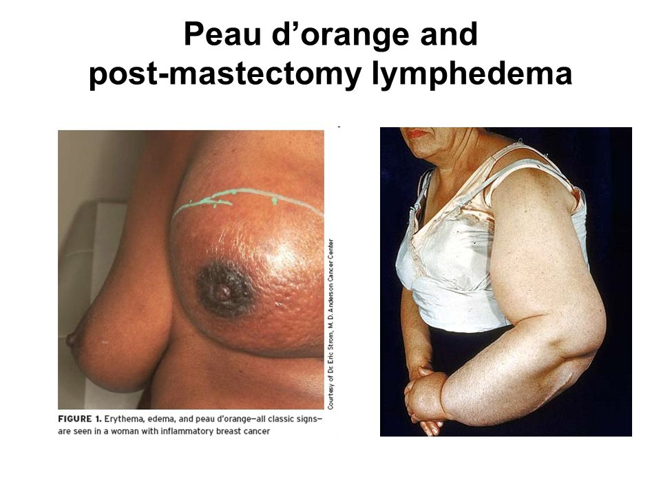 Peau d'orange and post-mastectomy lymphedema