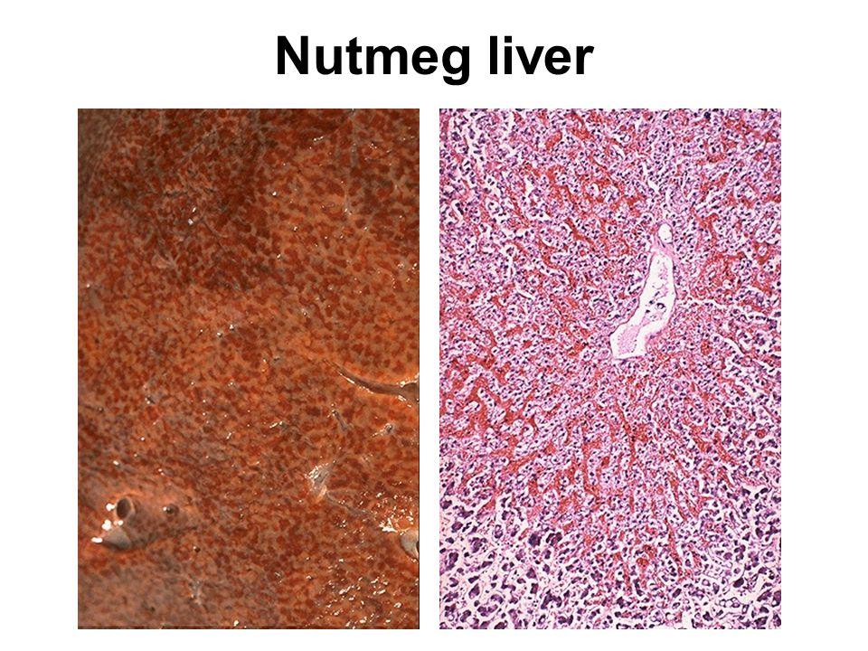 Nutmeg liver