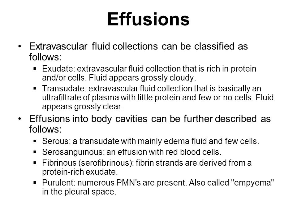 Effusions Extravascular fluid collections can be classified as follows: