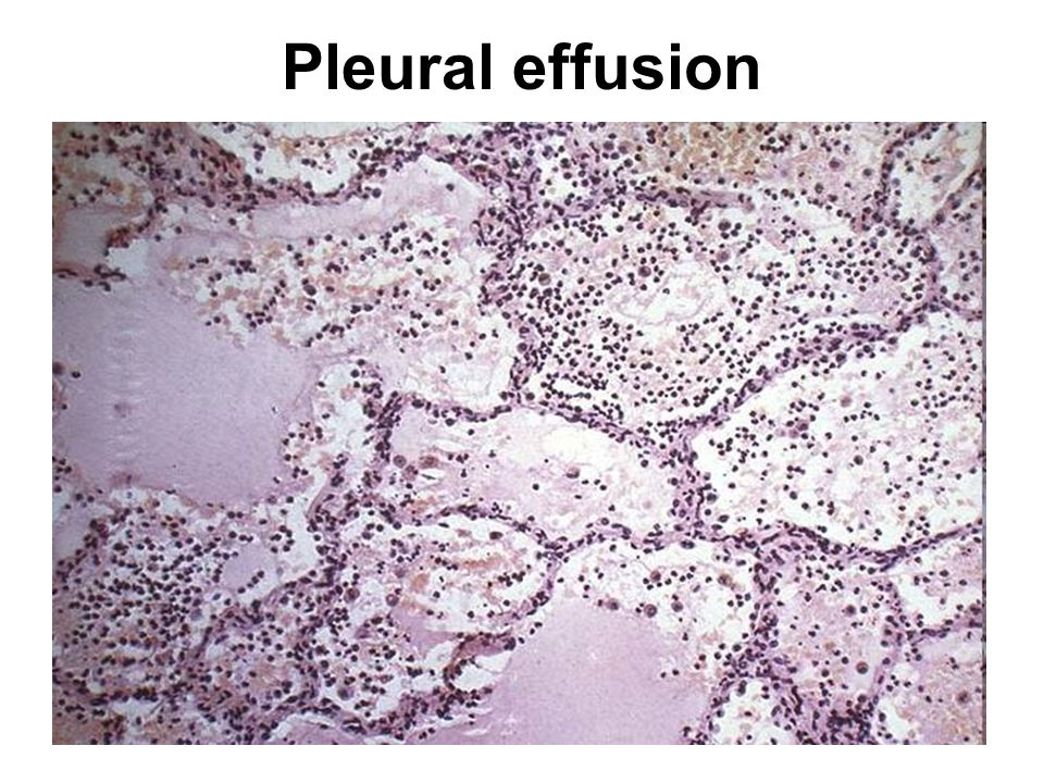 Pleural effusion http://peir.path.uab.edu:3555/images/med/00010657.jpg