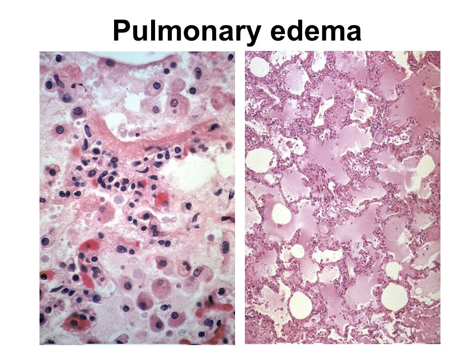 Pulmonary edema http://peir.path.uab.edu:3555/images/med/00011603.jpg