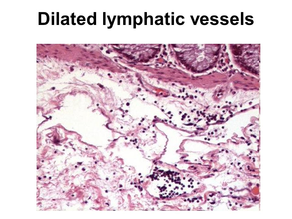 Dilated lymphatic vessels