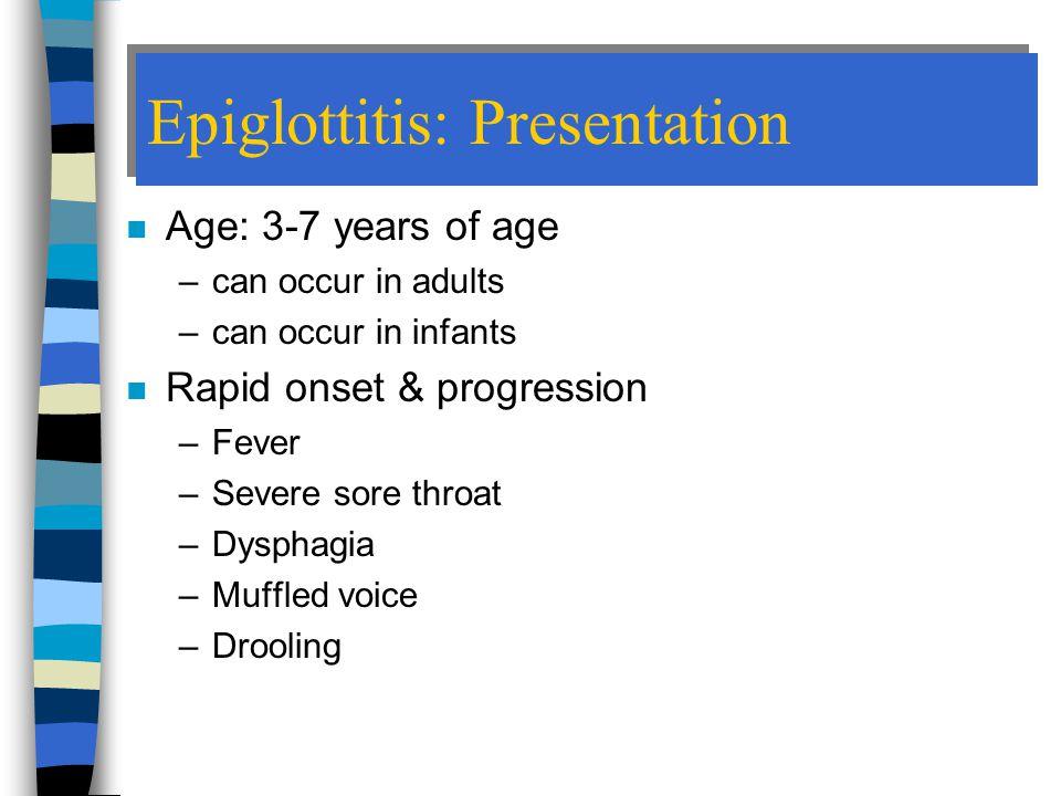 Epiglottitis: Presentation