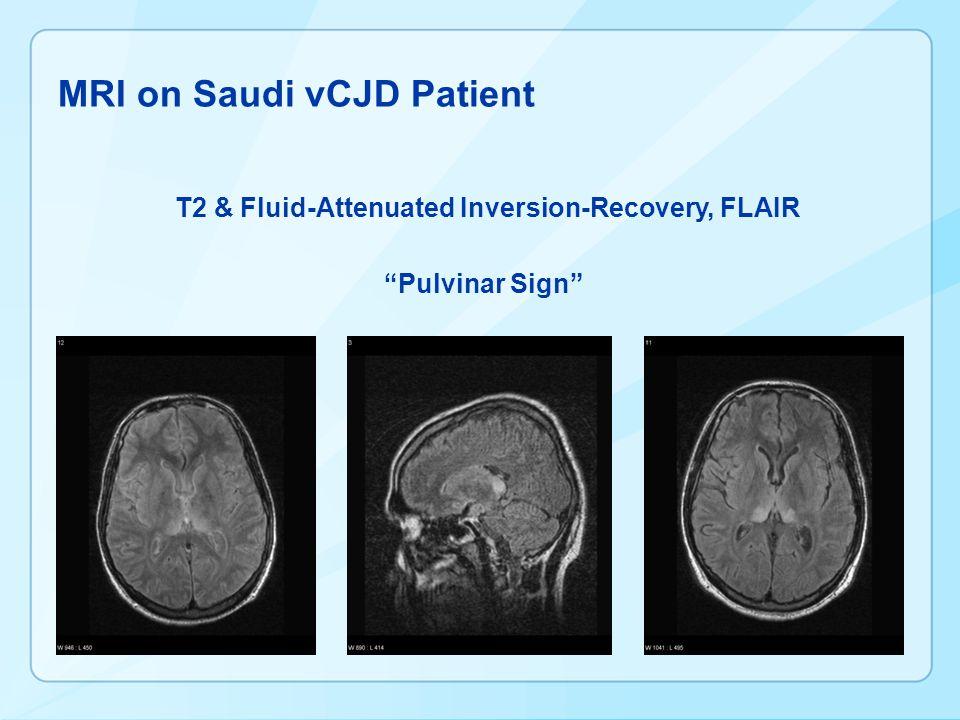 MRI on Saudi vCJD Patient