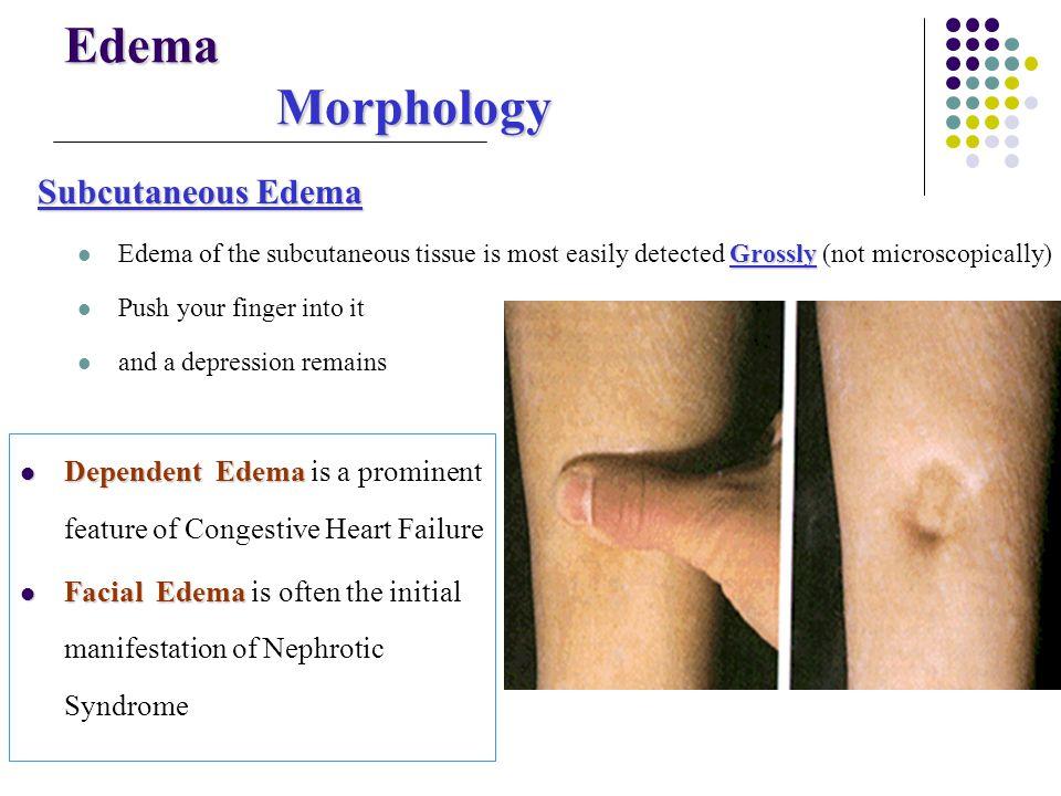 Edema Morphology Subcutaneous Edema