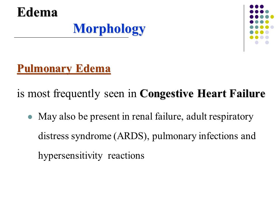 Edema Morphology Pulmonary Edema