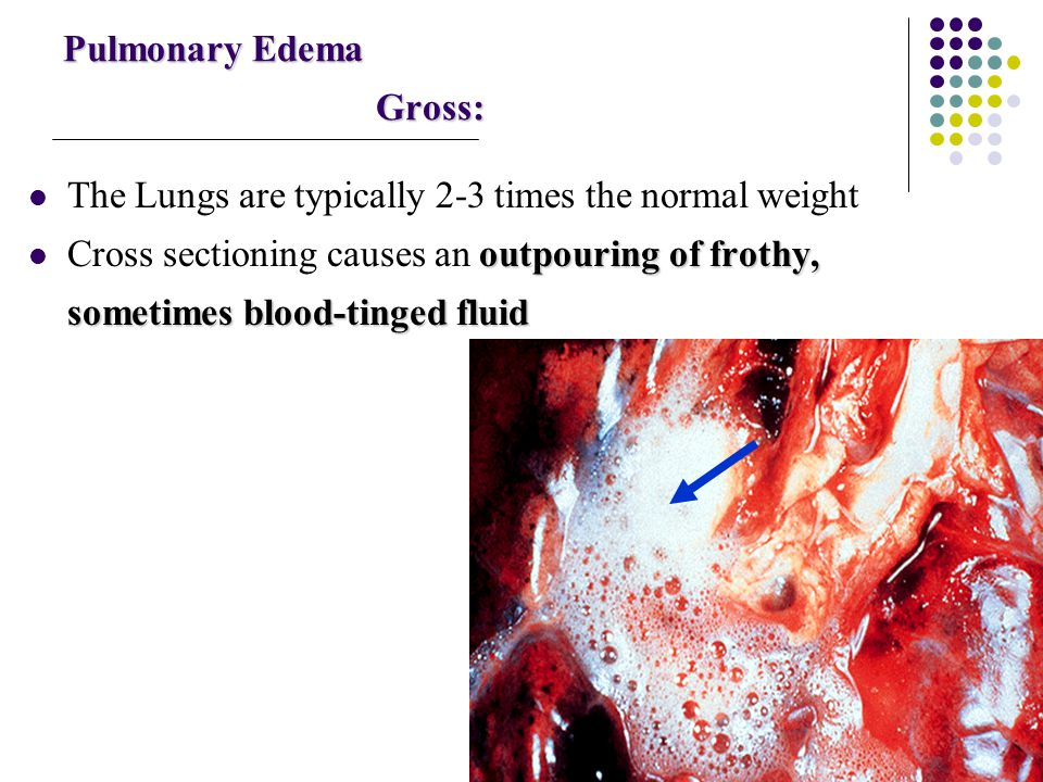 Pulmonary Edema Gross: