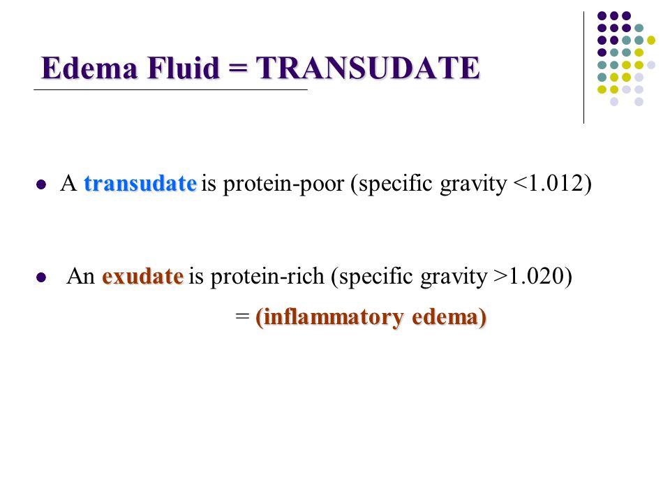 Edema Fluid = TRANSUDATE