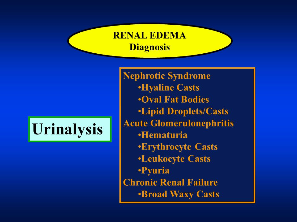Urinalysis RENAL EDEMA Diagnosis Nephrotic Syndrome Hyaline Casts