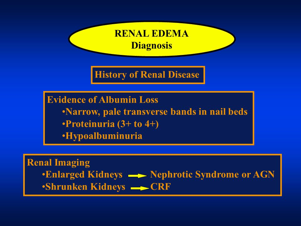 RENAL EDEMA Diagnosis. History of Renal Disease. Evidence of Albumin Loss. Narrow, pale transverse bands in nail beds.