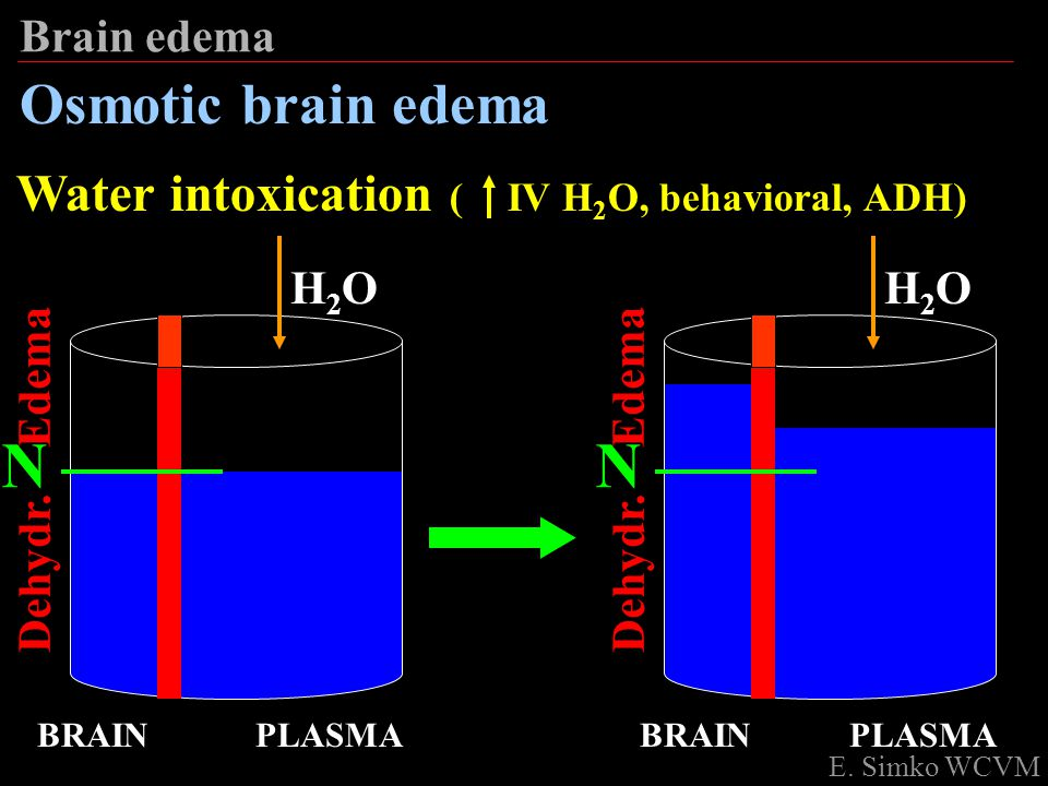 N N Osmotic brain edema Water intoxication ( IV H2O, behavioral, ADH)