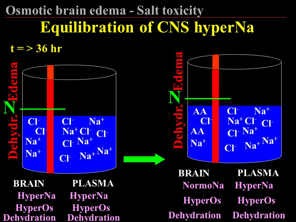 N N Equilibration of CNS hyperNa Osmotic brain edema - Salt toxicity