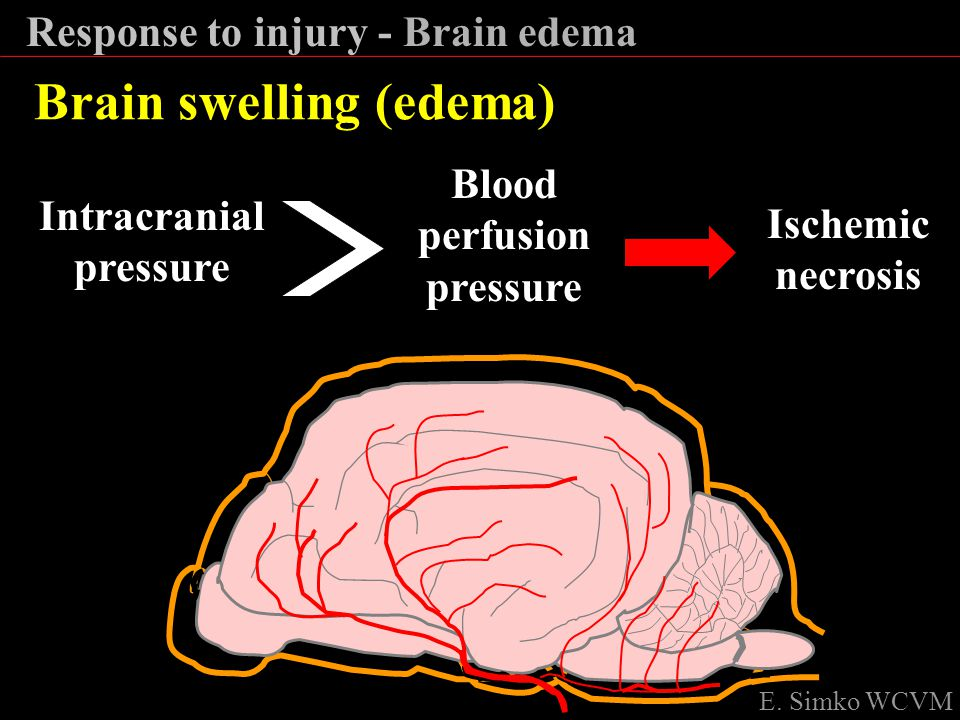 Blood perfusion pressure Intracranial pressure