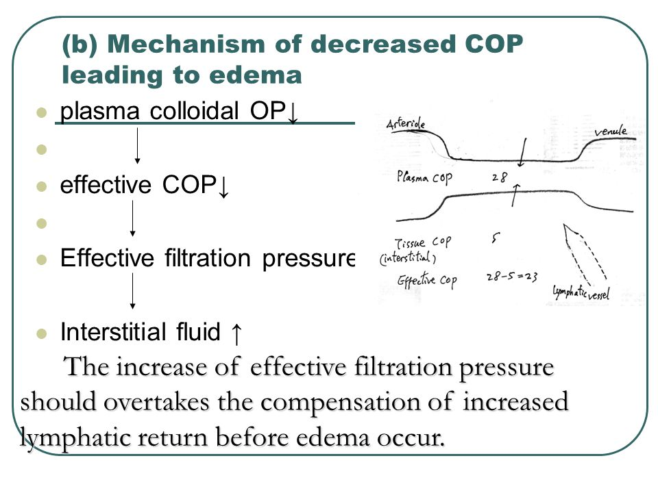 (b) Mechanism of decreased COP leading to edema