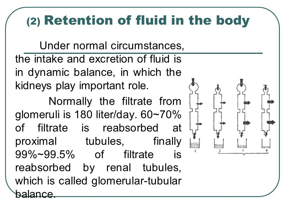 (2) Retention of fluid in the body