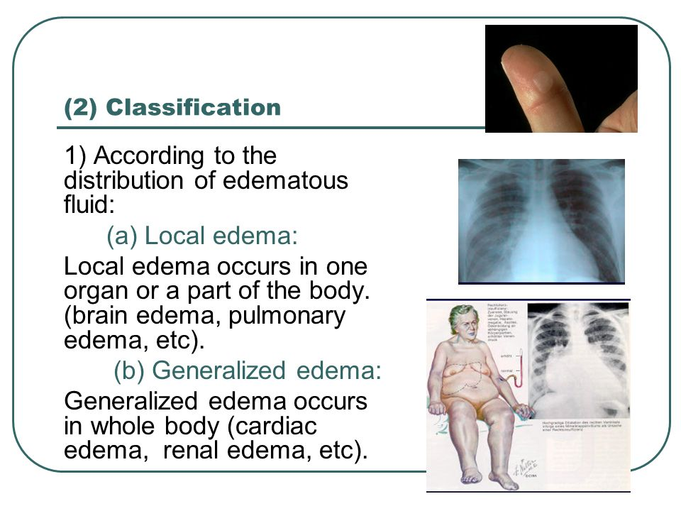 1) According to the distribution of edematous fluid: (a) Local edema: