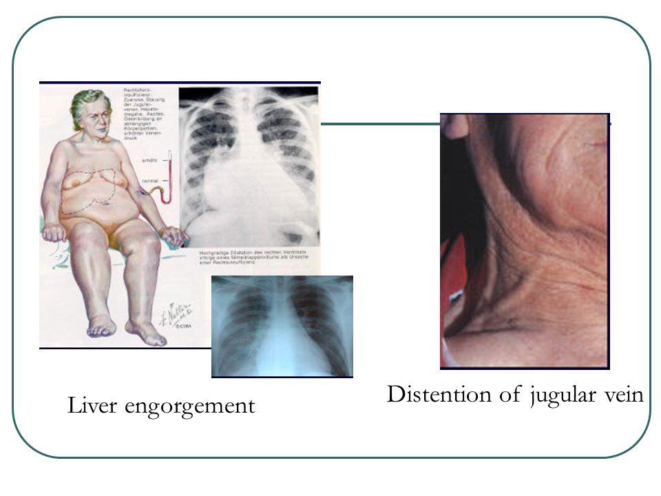 Distention of jugular vein