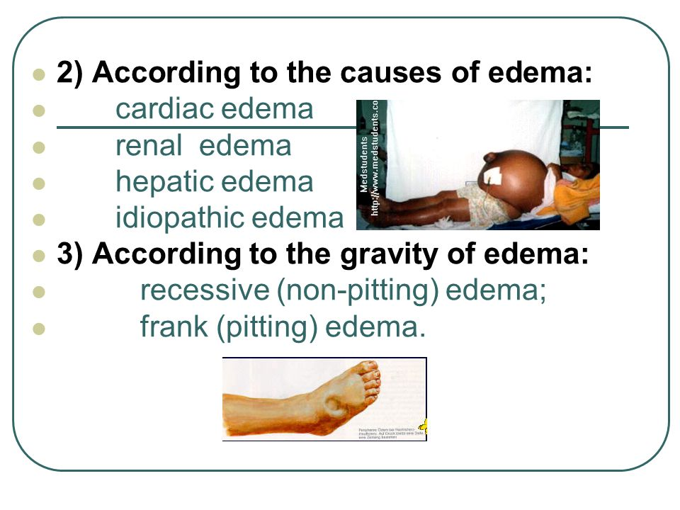 2) According to the causes of edema: