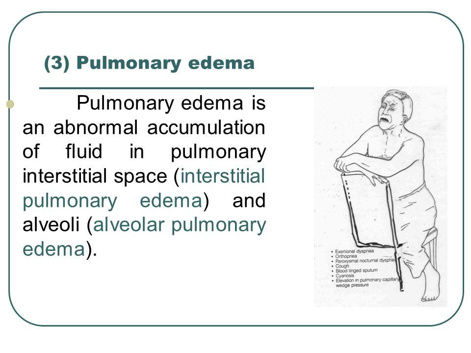(3) Pulmonary edema
