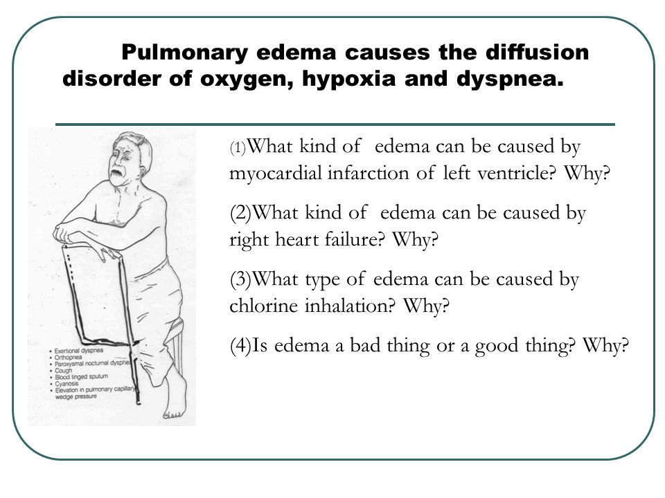 (2)What kind of edema can be caused by right heart failure Why