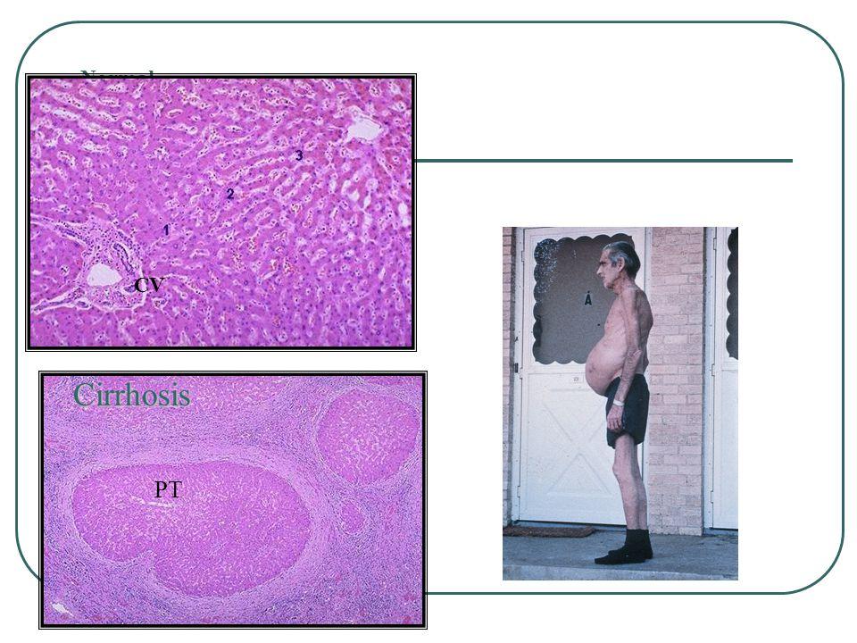Normal CV Cirrhosis PT