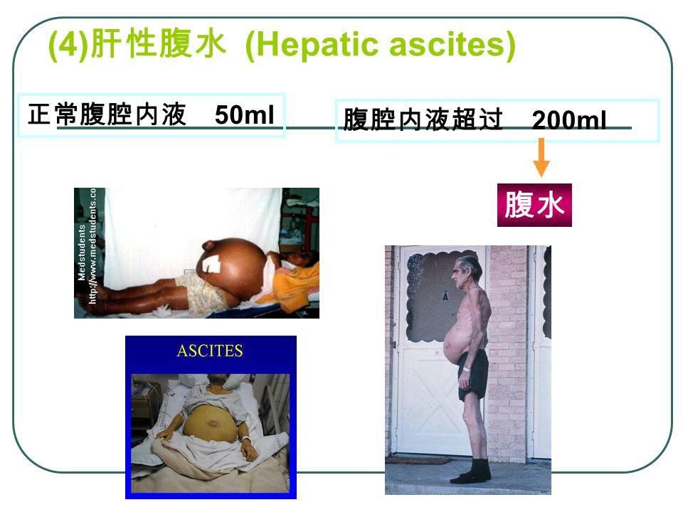 (4)肝性腹水 (Hepatic ascites)
