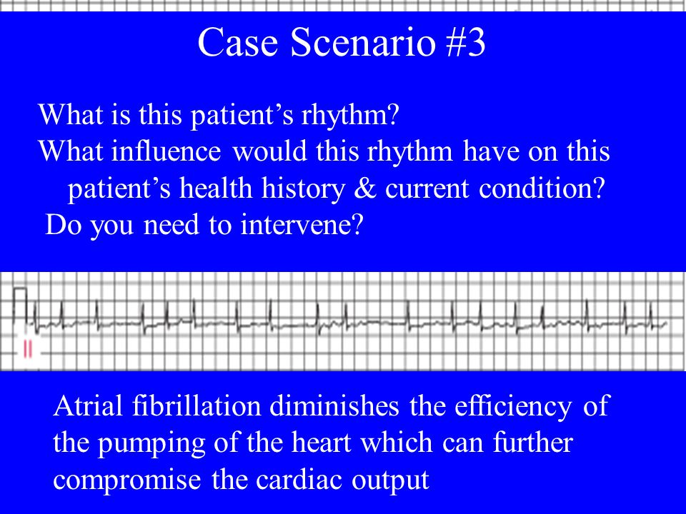 Case Scenario Case Scenario #3 What is this patient's rhythm