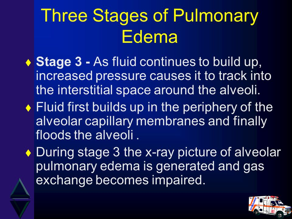 Three Stages of Pulmonary Edema