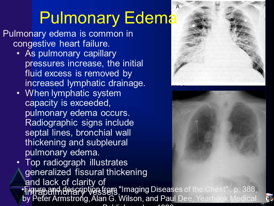 Pulmonary Edema Pulmonary edema is common in congestive heart failure.