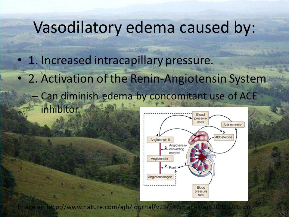 Vasodilatory edema caused by: