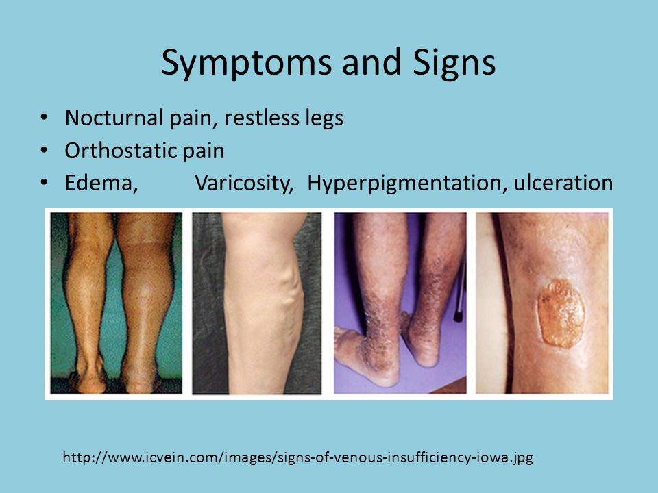 Symptoms and Signs Nocturnal pain, restless legs Orthostatic pain