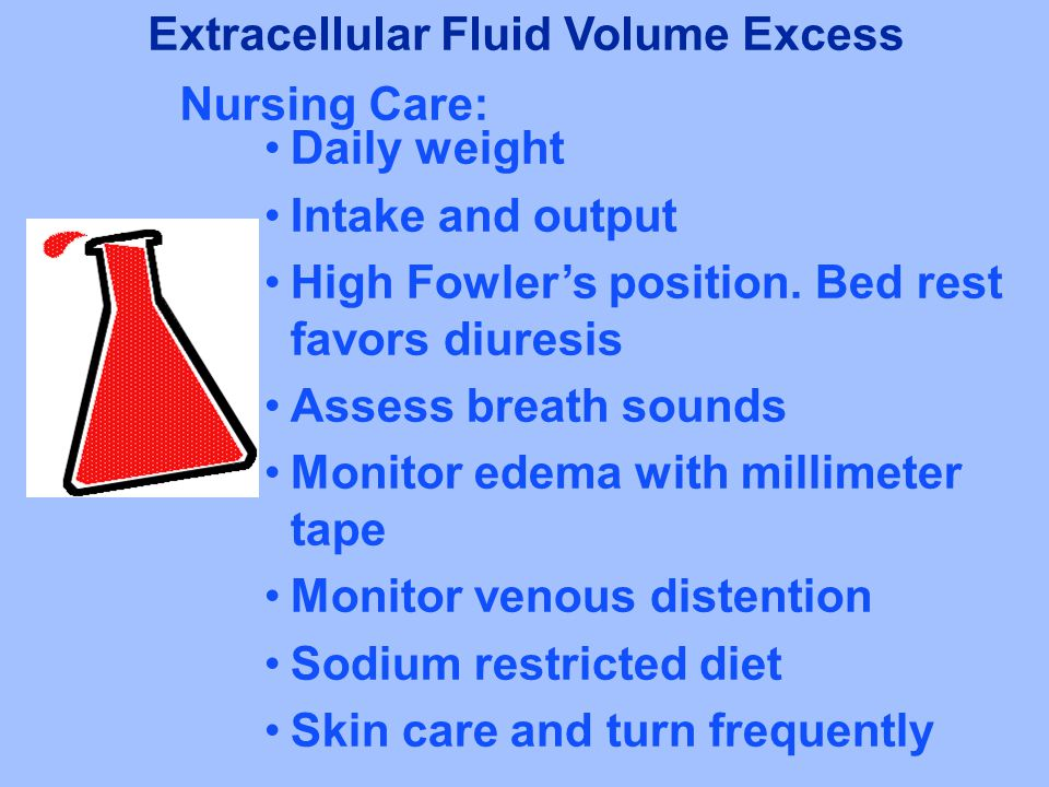 Extracellular Fluid Volume Excess
