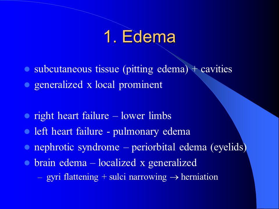 1. Edema subcutaneous tissue (pitting edema) + cavities