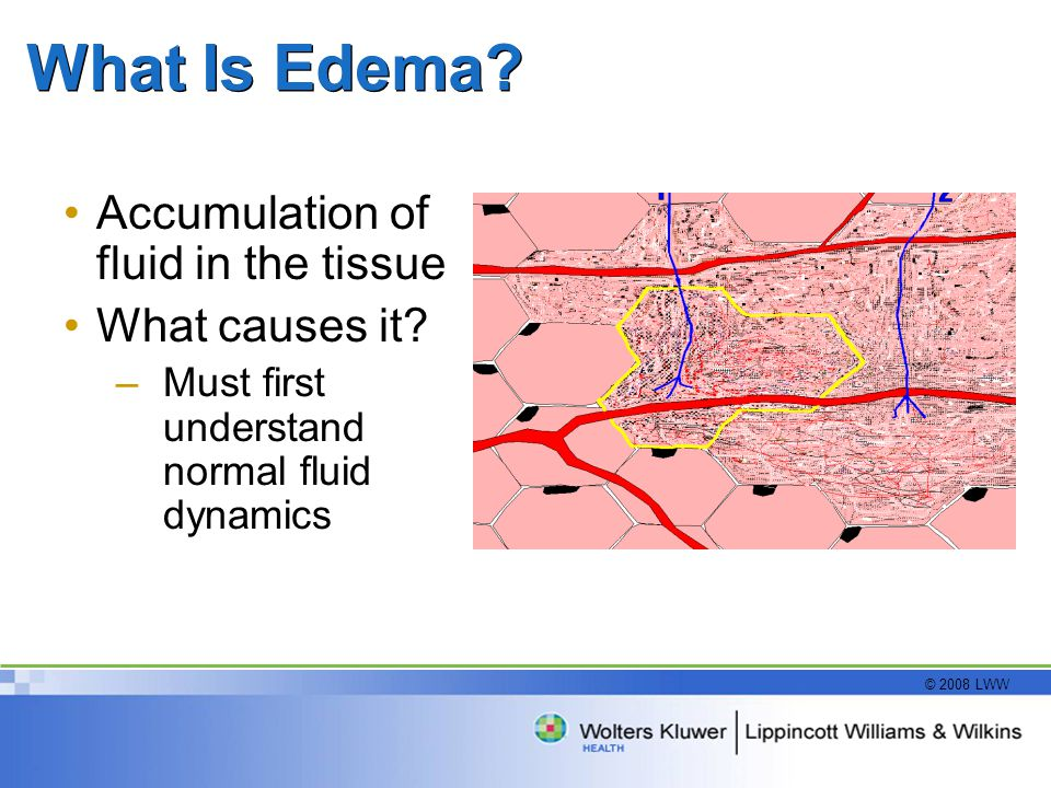 What Is Edema Accumulation of fluid in the tissue What causes it