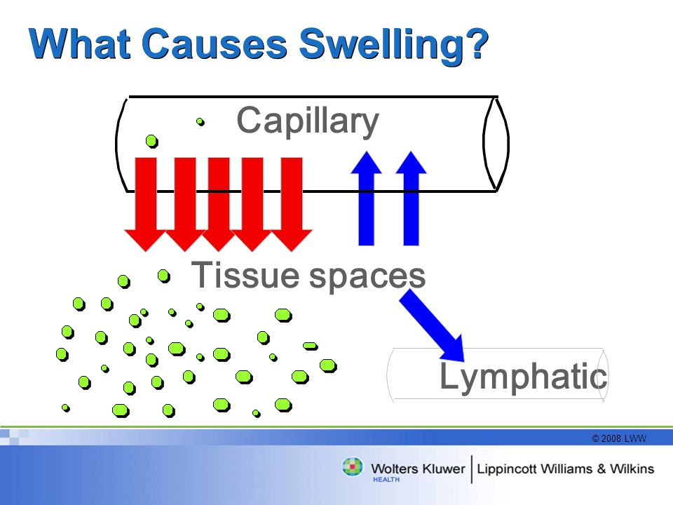 What Causes Swelling Capillary Tissue spaces Lymphatic